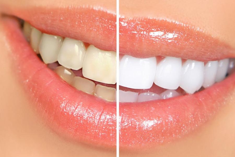 blanqueamiento dental torremolinos